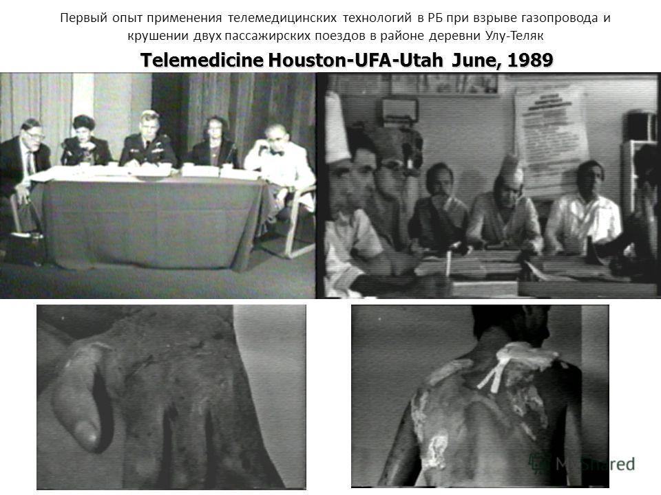 Telemedicine Houston-UFA-Utah June, 1989 Первый опыт применения телемедицинских технологий в РБ при взрыве газопровода и крушении двух пассажирских поездов в районе деревни Улу-Теляк