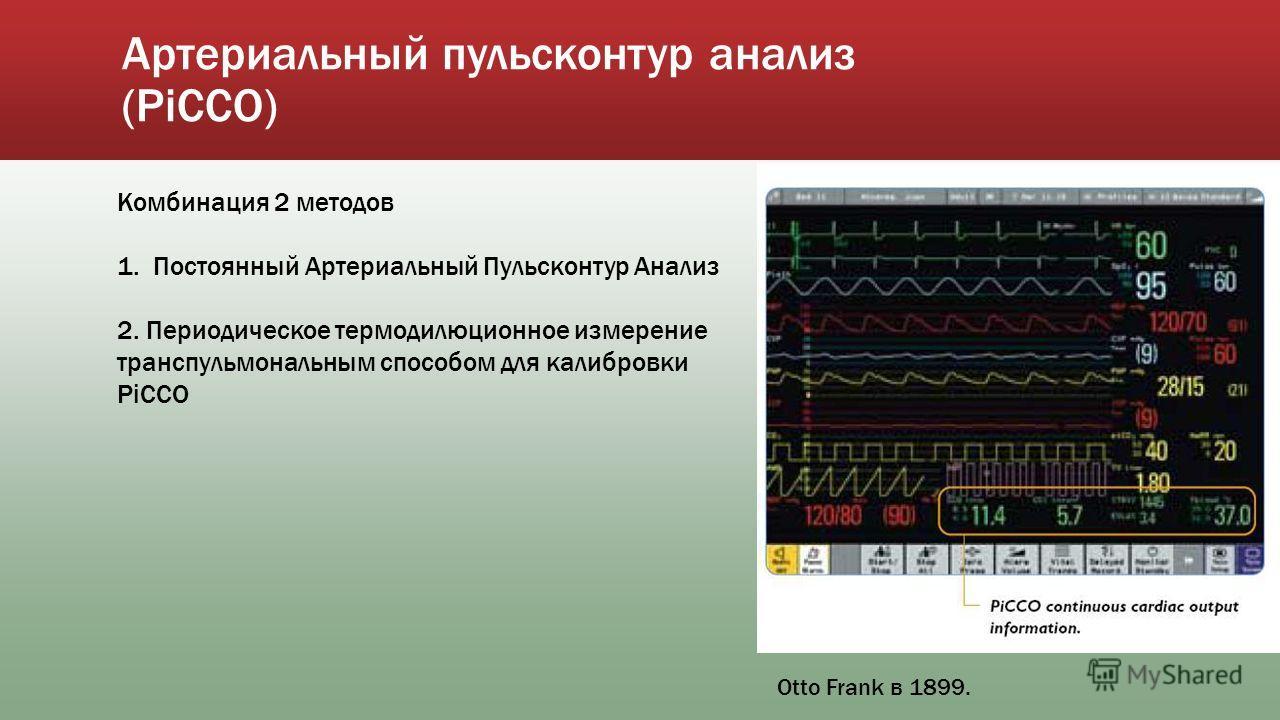 Артериальный пульсконтур анализ (PiCCO) Комбинация 2 методов 1. Постоянный Артериальный Пульсконтур Анализ 2. Периодическое термодилюционное измерение транспульмональным способом для калибровки РiCCO Otto Frank в 1899.