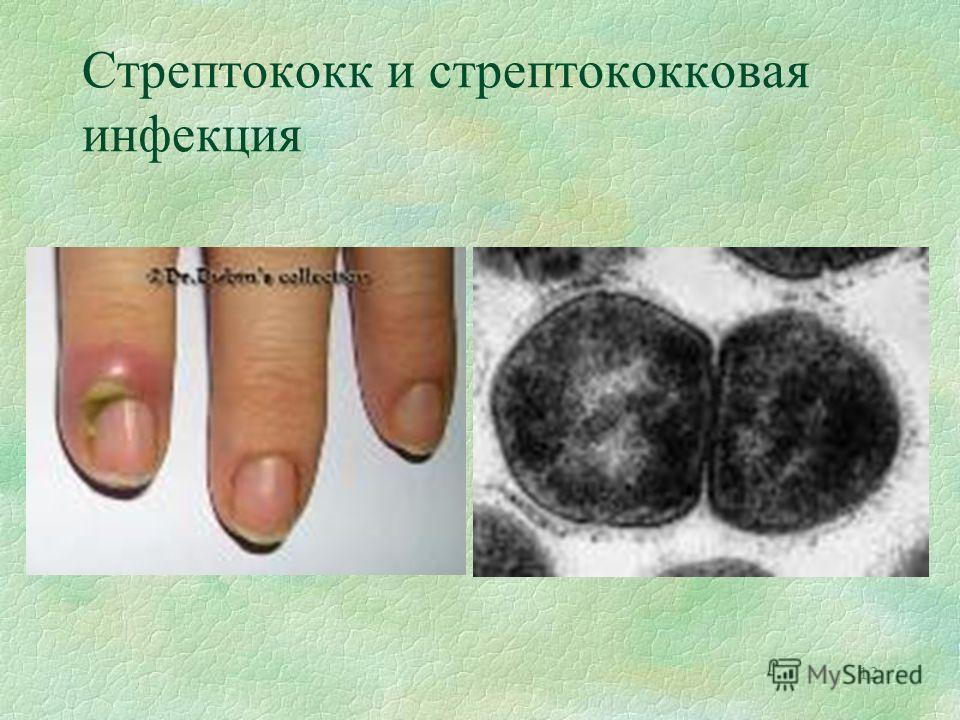 12 Стрептококк и стрептококковая инфекция