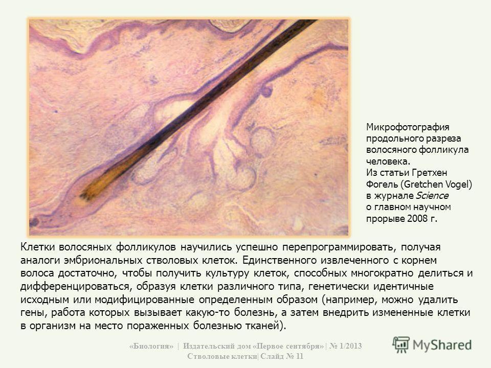Клетки волосяных фолликулов научились успешно перепрограммировать, получая аналоги эмбриональных стволовых клеток. Единственного извлеченного с корнем волоса достаточно, чтобы получить культуру клеток, способных многократно делиться и дифференцироват