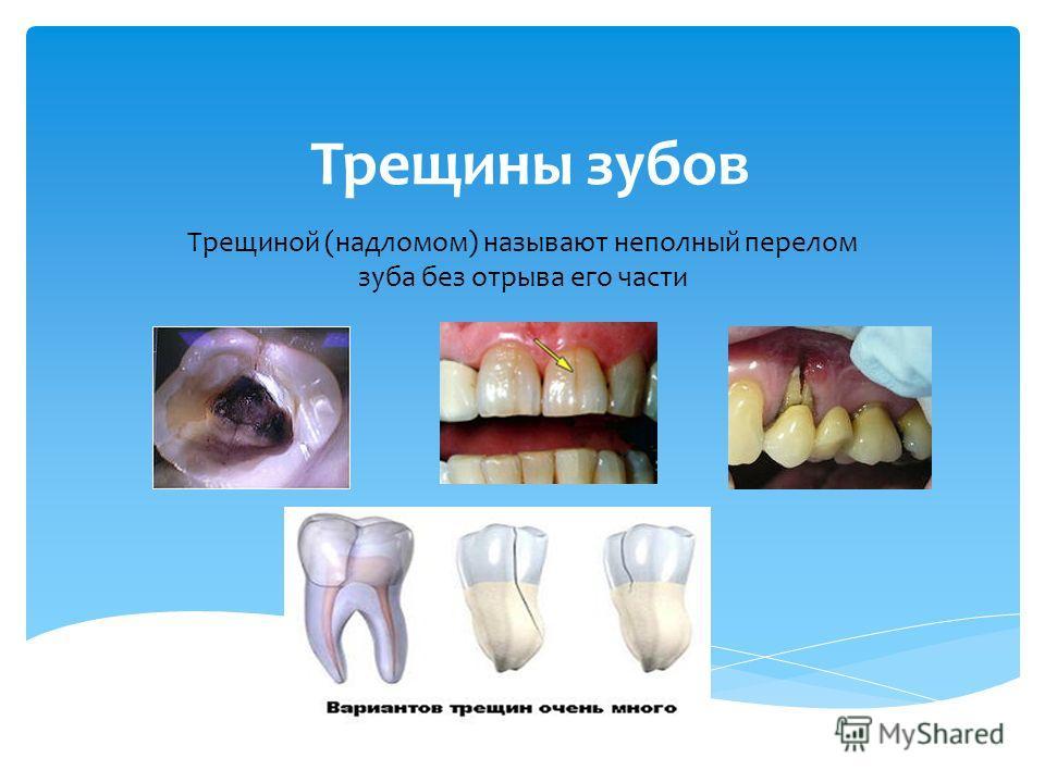 Трещины зубов Трещиной (надломом) называют неполный перелом зуба без отрыва его части