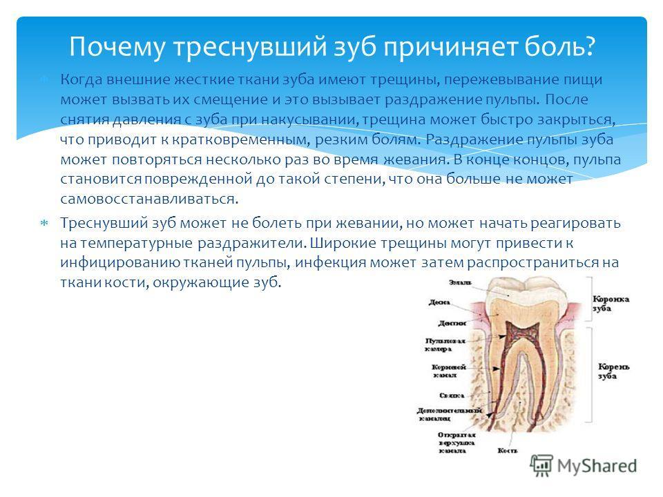 Когда внешние жесткие ткани зуба имеют трещины, пережевывание пищи может вызвать их смещение и это вызывает раздражение пульпы. После снятия давления с зуба при накусывании, трещина может быстро закрыться, что приводит к кратковременным, резким болям