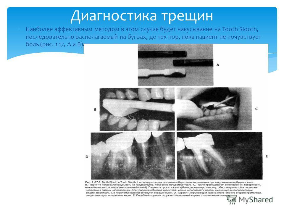Наиболее эффективным методом в этом случае будет накусывание на Tooth Slooth, последовательно располагаемый на буграх, до тех пор, пока пациент не почувствует боль (рис. 1-17, А и В). Диагностика трещин