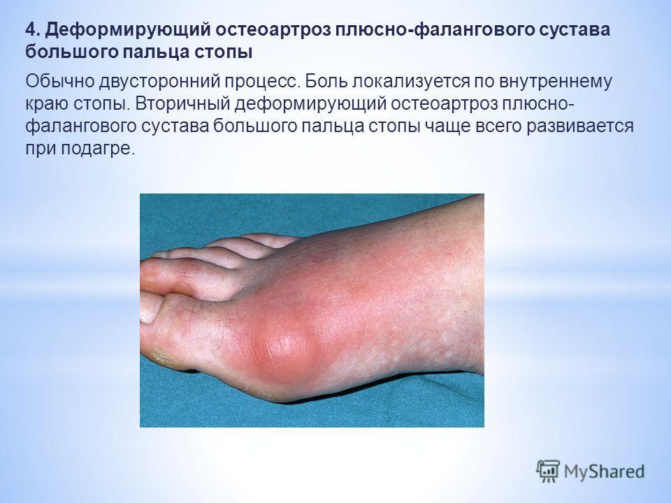 Консультация мрт коленного сустава