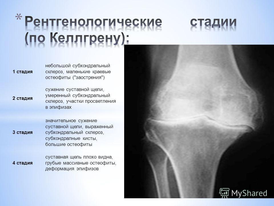 1 стадия небольшой субхондральный склероз, маленькие краевые остеофиты (