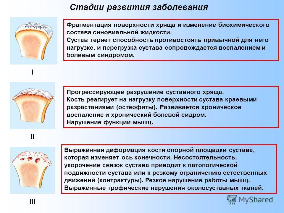 Стадии развития заболевания Фрагментация поверхности хряща и изменение биохимического состава синовиальной жидкости. Сустав теряет способность противостоять привычной для него нагрузке, и перегрузка сустава сопровождается воспалением и болевым синдро