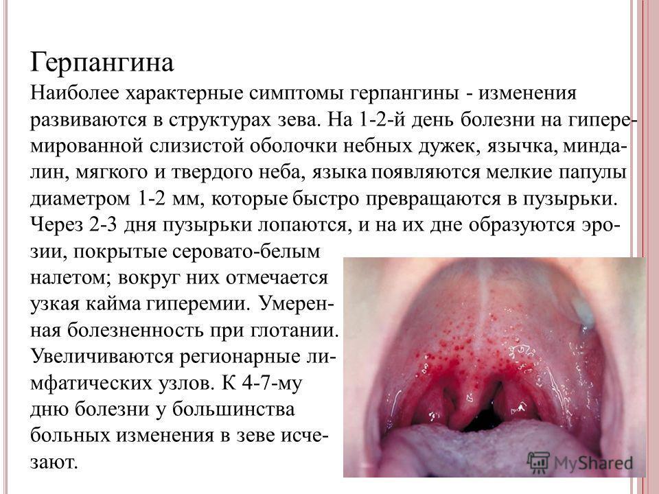 Герпангина Наиболее характерные симптомы герпангины - изменения развиваются в структурах зева. На 1-2-й день болезни на гипере- мированной слизистой оболочки небных дужек, язычка, минда- лин, мягкого и твердого неба, языка появляются мелкие папулы ди