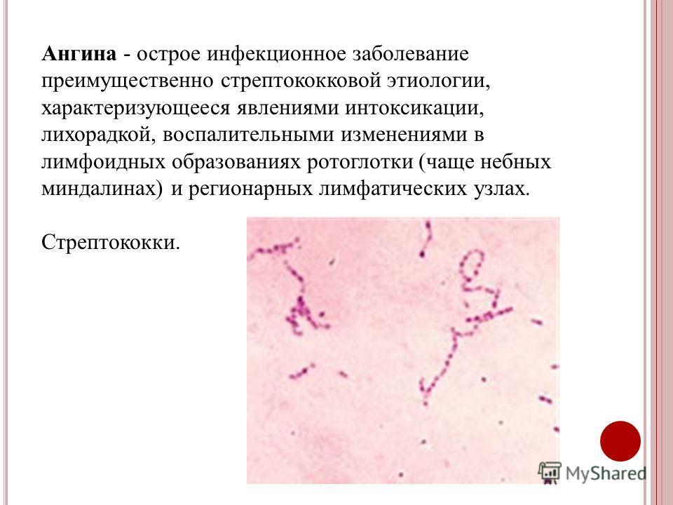 Ангина - острое инфекционное заболевание преимущественно стрептококковой этиологии, характеризующееся явлениями интоксикации, лихорадкой, воспалительными изменениями в лимфоидных образованиях ротоглотки (чаще небных миндалинах) и регионарных лимфатич