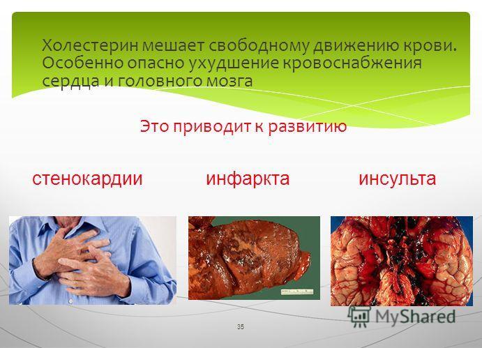 35 Холестерин мешает свободному движению крови. Особенно опасно ухудшение кровоснабжения сердца и головного мозга Это приводит к развитию стенокардииинфарктаинсульта