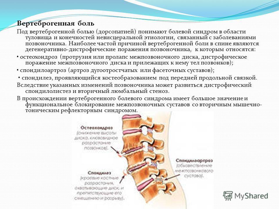 Вертеброгенная боль Под вертеброгенной болью (дорсопатией) понимают болевой синдром в области туловища и конечностей невисцеральной этиологии, связанный с заболеваниями позвоночника. Наиболее частой причиной вертеброгенной боли в спине являются деген