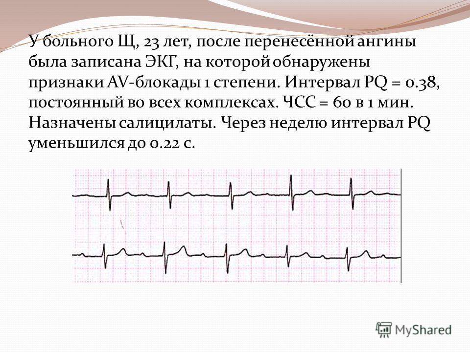 У больного Щ, 23 лет, после перенесённой ангины была записана ЭКГ, на которой обнаружены признаки AV-блокады 1 степени. Интервал PQ = 0.38, постоянный во всех комплексах. ЧСС = 60 в 1 мин. Назначены салицилаты. Через неделю интервал PQ уменьшился до