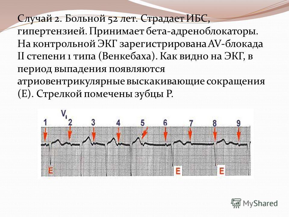 Случай 2. Больной 52 лет. Страдает ИБС, гипертензией. Принимает бета-адреноблокаторы. На контрольной ЭКГ зарегистрирована AV-блокада II степени 1 типа (Венкебаха). Как видно на ЭКГ, в период выпадения появляются атриовентрикулярные выскакивающие сокр