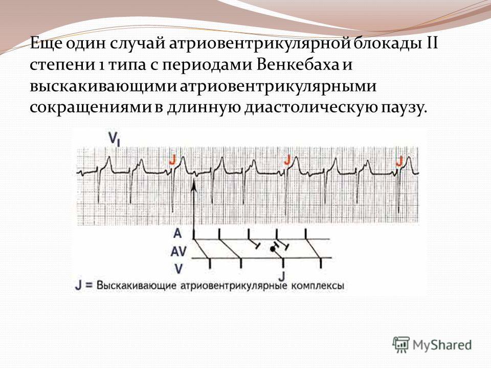 Еще один случай атриовентрикулярной блокады II степени 1 типа с периодами Венкебаха и выскакивающими атриовентрикулярными сокращениями в длинную диастолическую паузу.