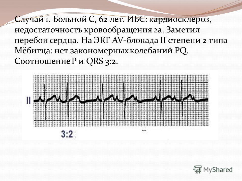 Случай 1. Больной С, 62 лет. ИБС: кардиосклероз, недостаточность кровообращения 2 а. Заметил перебои сердца. На ЭКГ AV-блокада II степени 2 типа Мёбитца: нет закономерных колебаний PQ. Cоотношение Р и QRS 3:2.