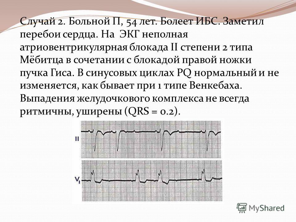 Случай 2. Больной П, 54 лет. Болеет ИБС. Заметил перебои сердца. На ЭКГ неполная атриовентрикулярная блокада II степени 2 типа Мёбитца в сочетании с блокадой правой ножки пучка Гиса. В синусовых циклах PQ нормальный и не изменяется, как бывает при 1