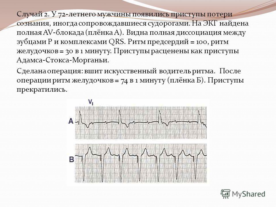Случай 2. У 72-летнего мужчины появились приступы потери сознания, иногда сопровождавшиеся судорогами. На ЭКГ найдена полная AV-блокада (плёнка А). Видна полная диссоциация между зубцами Р и комплексами QRS. Ритм предсердий = 100, ритм желудочков = 3