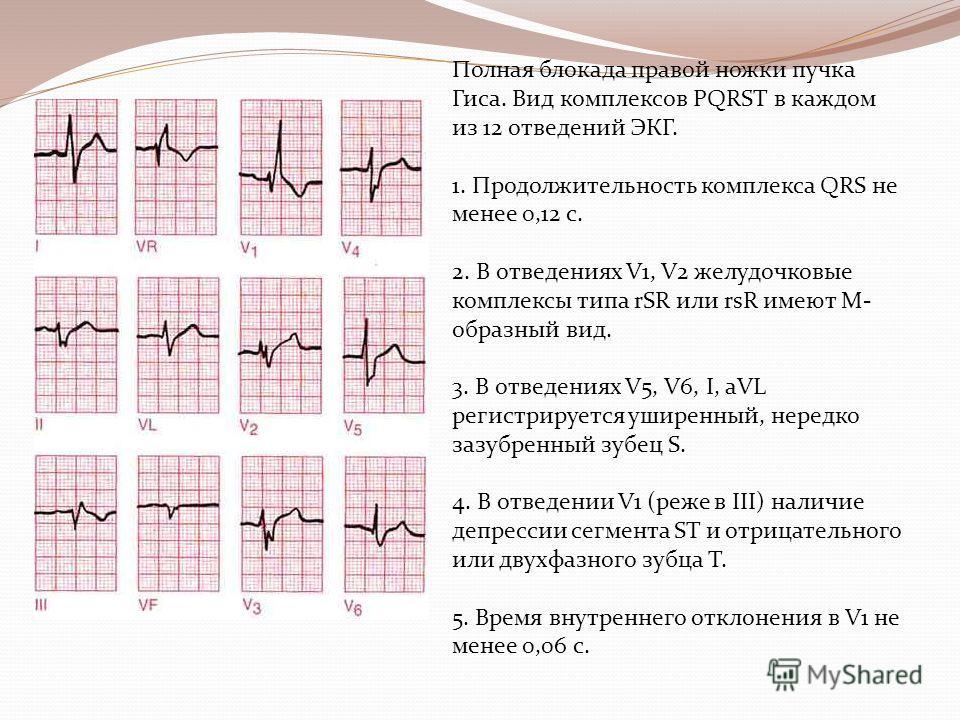 Полная блокада правой ножки пучка Гиса. Вид комплексов PQRST в каждом из 12 отведений ЭКГ. 1. Продолжительность комплекса QRS не менее 0,12 с. 2. В отведениях V1, V2 желудочковые комплексы типа rSR или rsR имеют М- образный вид. 3. В отведениях V5, V