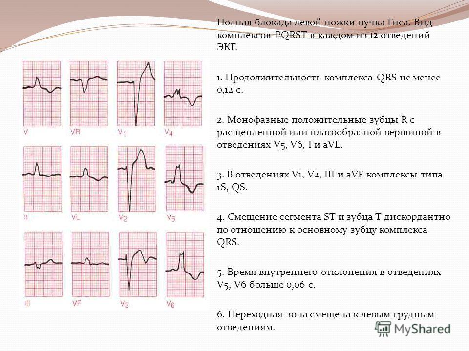 Полная блокада левой ножки пучка Гиса. Вид комплексов PQRST в каждом из 12 отведений ЭКГ. 1. Продолжительность комплекса QRS не менее 0,12 с. 2. Монофазные положительные зубцы R с расщепленной или платообразной вершиной в отведениях V5, V6, I и aVL.