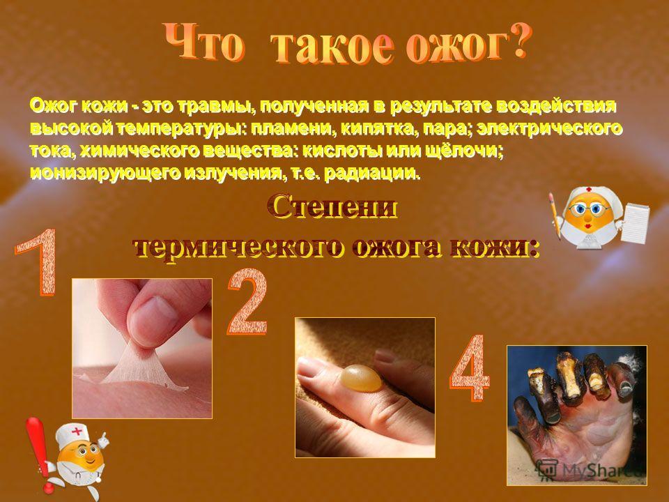 Ожог кожи - это травмы, полученная в результате воздействия высокой температуры: пламени, кипятка, пара; электрического тока, химического вещества: кислоты или щёлочи; ионизирующего излучения, т.е. радиации.