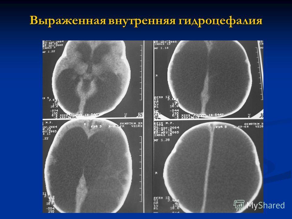 Выраженная внутренняя гидроцефалия