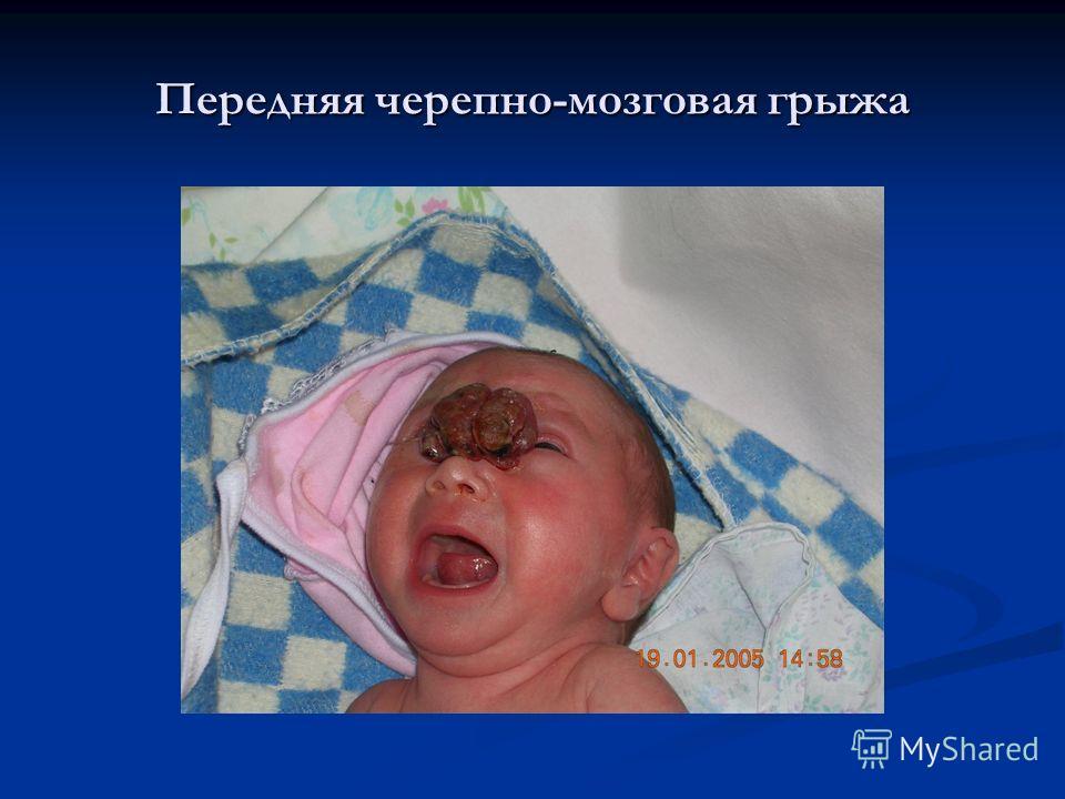 Передняя черепно-мозговая грыжа
