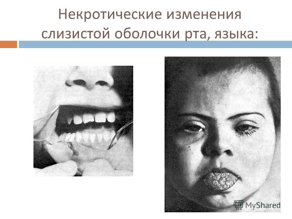 Некротические изменения слизистой оболочки рта, языка :