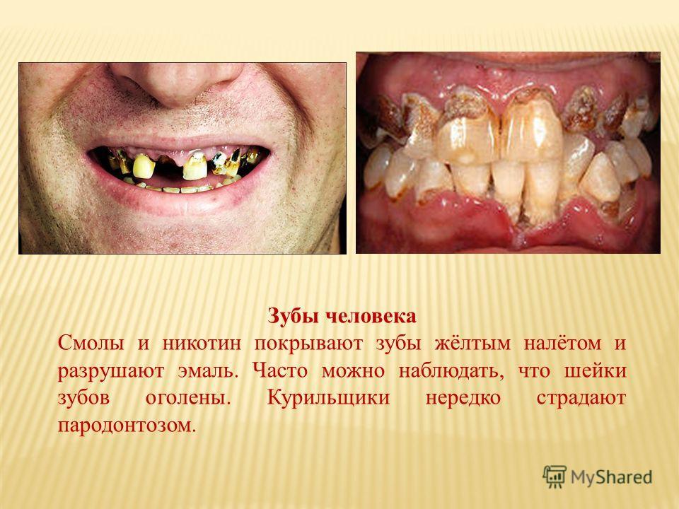 Зубы человека Смолы и никотин покрывают зубы жёлтым налётом и разрушают эмаль. Часто можно наблюдать, что шейки зубов оголены. Курильщики нередко страдают пародонтозом.