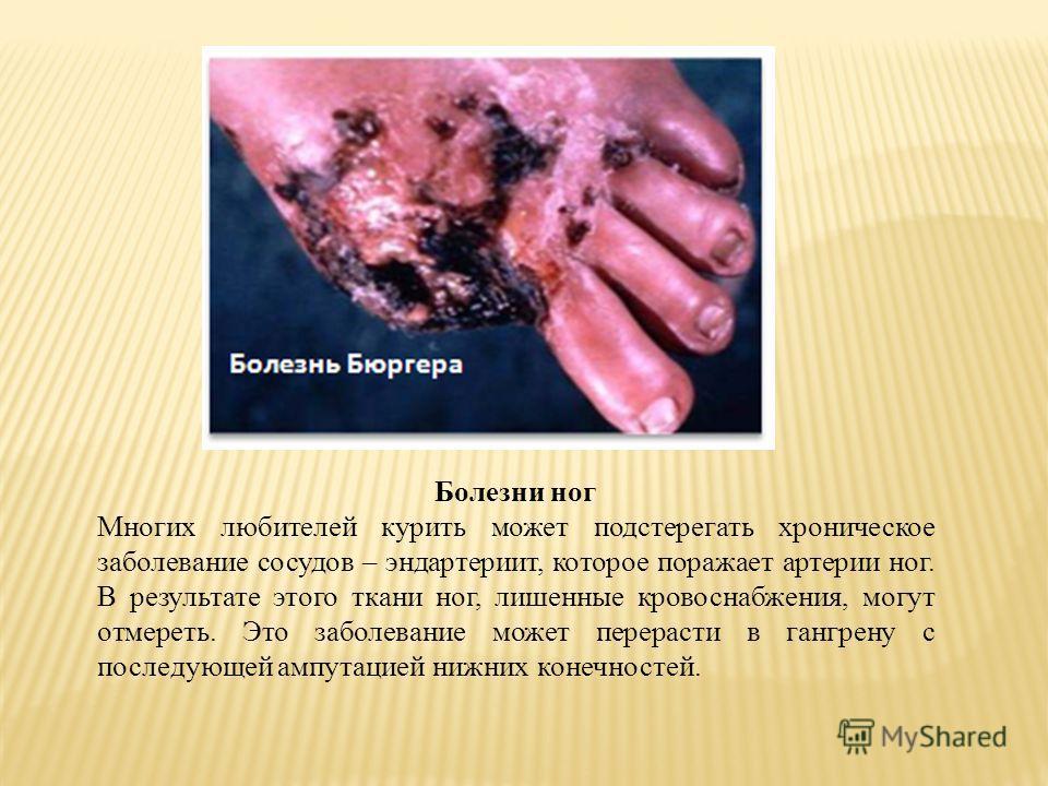 Болезни ног Многих любителей курить может подстерегать хроническое заболевание сосудов – эндартериит, которое поражает артерии ног. В результате этого ткани ног, лишенные кровоснабжения, могут отмереть. Это заболевание может перерасти в гангрену с по