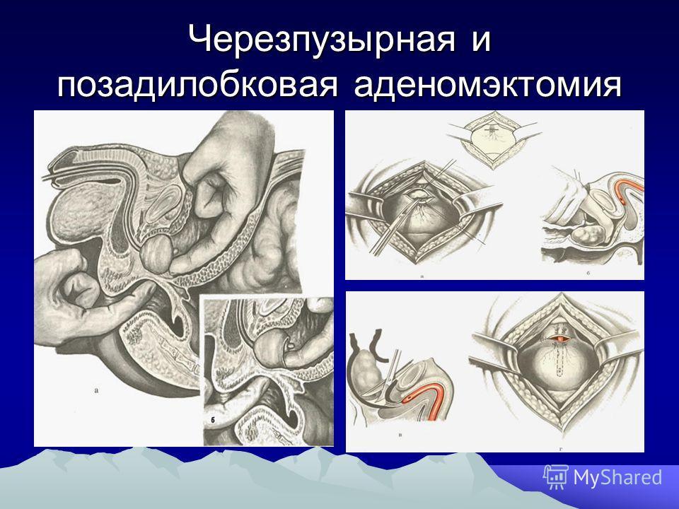 Черезпузырная и позадилобковая аденомэктомия