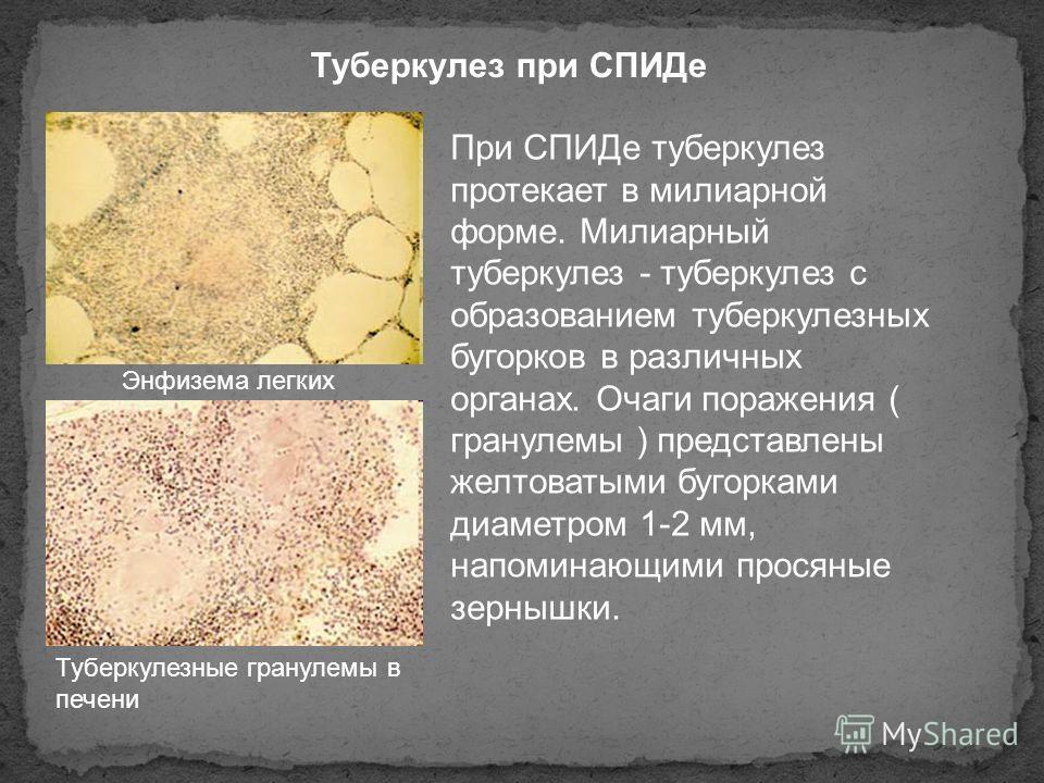 Туберкулез при СПИДе Энфизема легких Туберкулезные гранулемы в печени При СПИДе туберкулез протекает в милиарной форме. Милиарный туберкулез - туберкулез с образованием туберкулезных бугорков в различных органах. Очаги поражения ( гранулемы ) предста