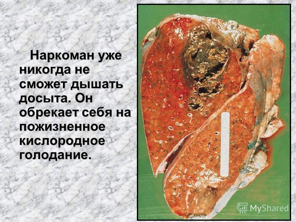 Наркоман уже никогда не сможет дышать досыта. Он обрекает себя на пожизненное кислородное голодание. Наркоман уже никогда не сможет дышать досыта. Он обрекает себя на пожизненное кислородное голодание.