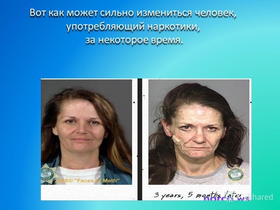 Вот как может сильно измениться человек, употребляющий наркотики, за некоторое время.