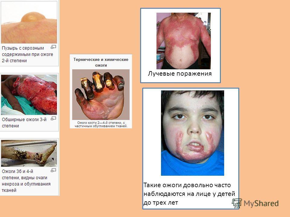 Лучевые поражения Такие ожоги довольно часто наблюдаются на лице у детей до трех лет
