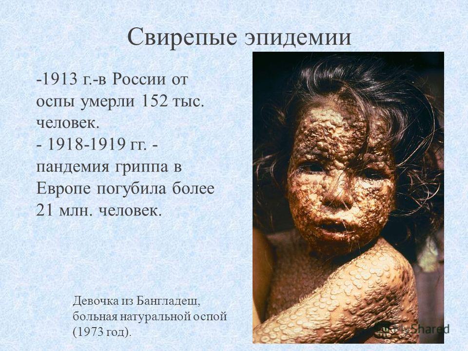 Свирепые эпидемии -1913 г.-в России от оспы умерли 152 тыс. человек. - 1918-1919 гг. - пандемия гриппа в Европе погубила более 21 млн. человек. Девочка из Бангладеш, больная натуральной оспой (1973 год).