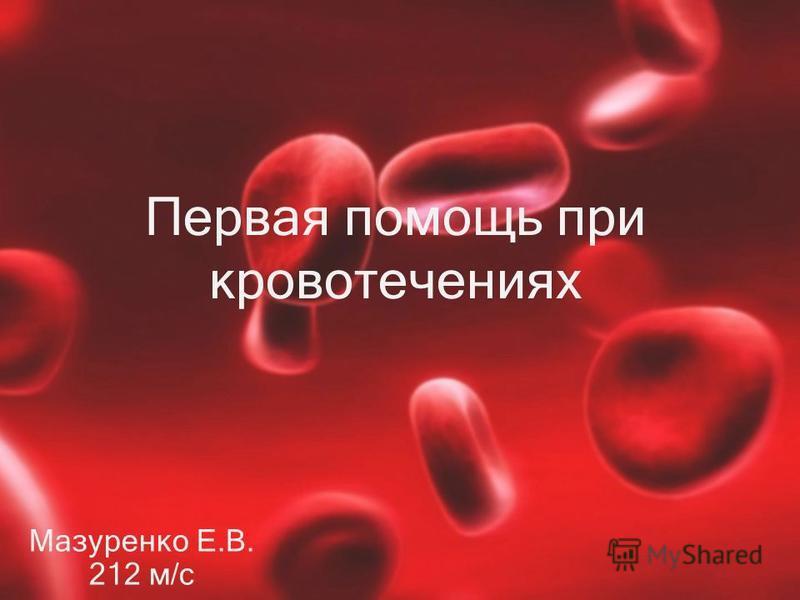 Первая помощь при кровотечениях Мазуренко Е.В. 212 м/с
