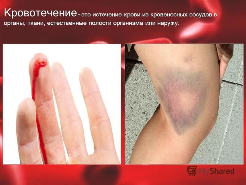 Кровотечение – это истечение крови из кровеносных сосудов в органы, ткани, естественные полости организма или наружу.