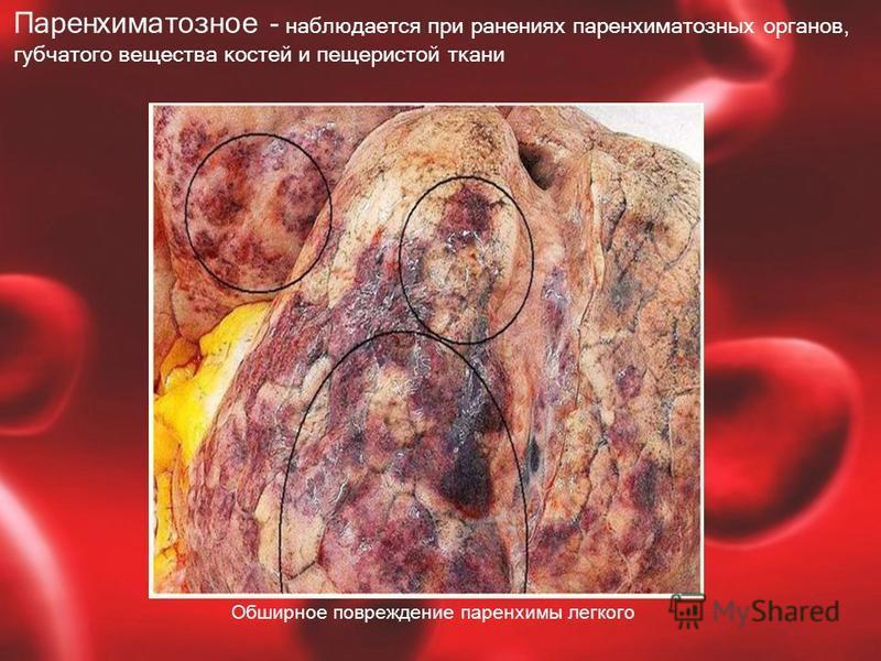Паренхиматозное - наблюдается при ранениях паренхиматозных органов, губчатого вещества костей и пещеристой ткани Обширное повреждение паренхимы легкого