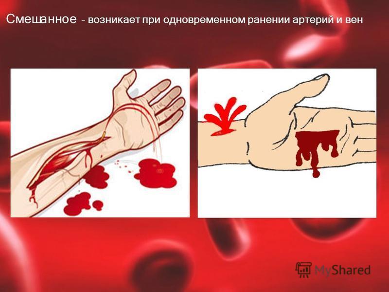 Смешанное - возникает при одновременном ранении артерий и вен
