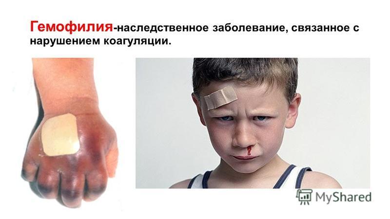 Гемофилия -наследственное заболевание, связанное с нарушением коагуляции.