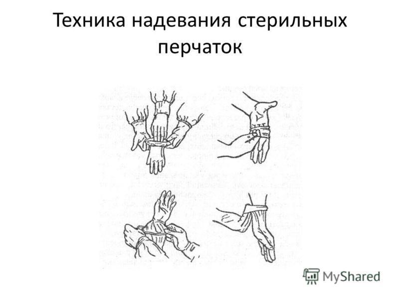 Техника надевания стерильных перчаток