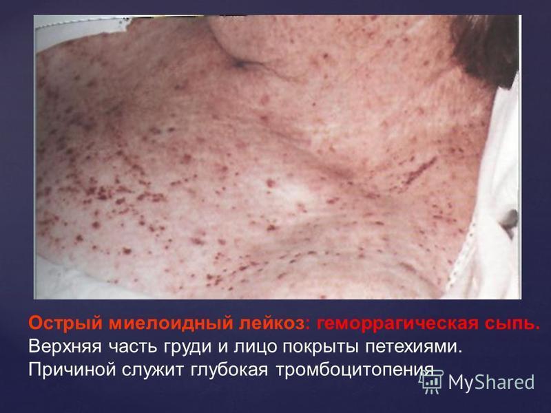 Острый миелоидный лейкоз: геморрагическая сыпь. Верхняя часть груди и лицо покрыты петехиями. Причиной служит глубокая тромбоцитопения