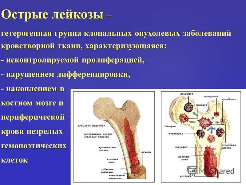 Острые лейкозы – гетерогенная группа клональных опухолевых заболеваний кроветворной ткани, характеризующаяся: - неконтролируемой пролиферацией, - нарушением дифференцировки, - накоплением в костном мозге и периферической крови незрелых гемопоэтически