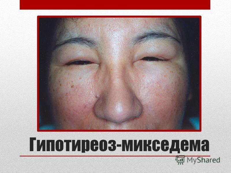 Гипотиреоз-микседема