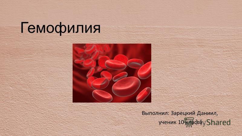 Гемофилия Выполнил: Зарецкий Даниил, ученик 10 класса